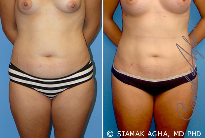 Orange County Newport Beach Liposuction Patient 10