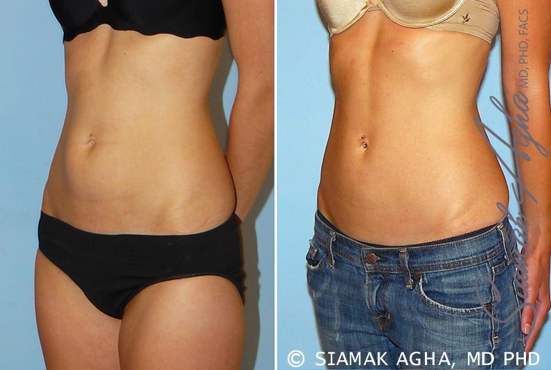 Orange County Newport Beach Liposuction 11 Front Left View