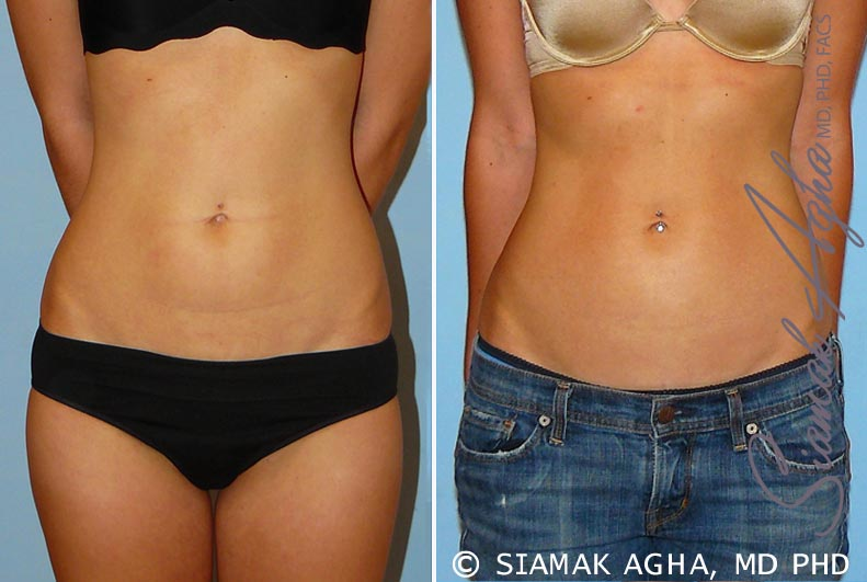 Orange County Newport Beach Liposuction 11 Front View