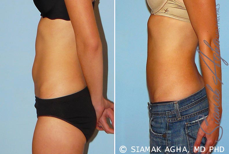 Orange County Newport Beach Liposuction 11 Left View