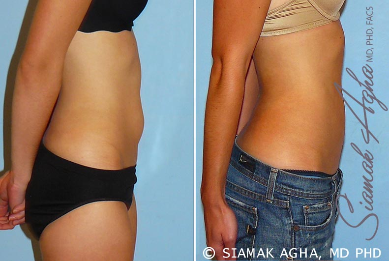 Orange County Newport Beach Liposuction 11 Right View