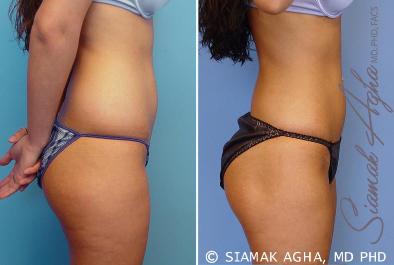 Orange County Newport Beach Liposuction 12 Right View