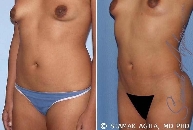 Orange County Newport Beach Liposuction 13 Front Left View