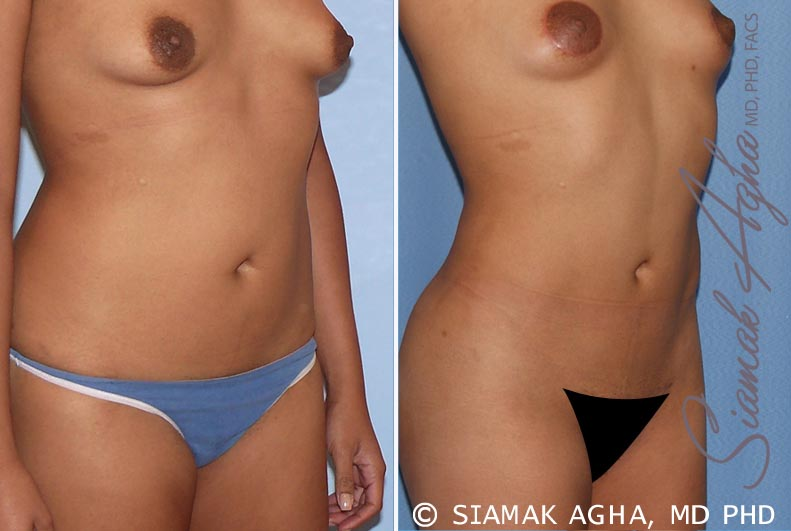 Orange County Newport Beach Liposuction 13 Front Right View