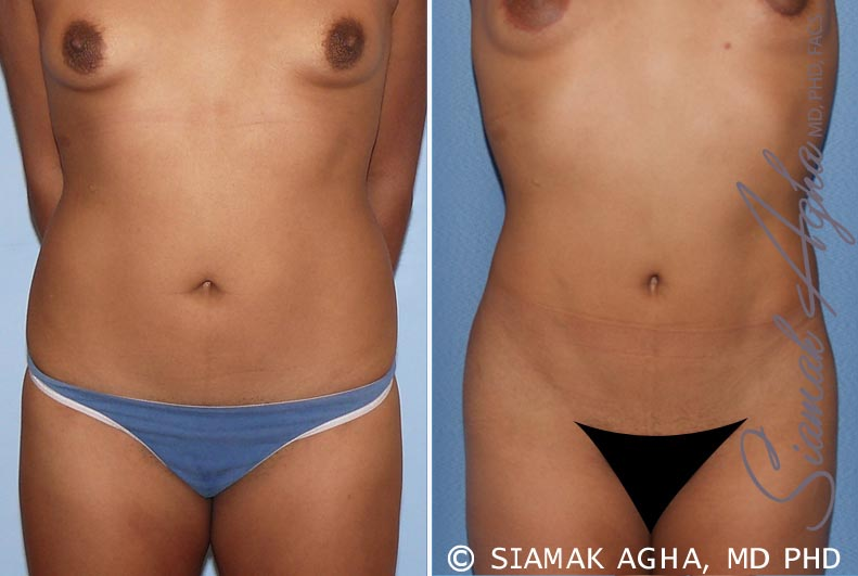 Orange County Newport Beach Liposuction 13 Front View