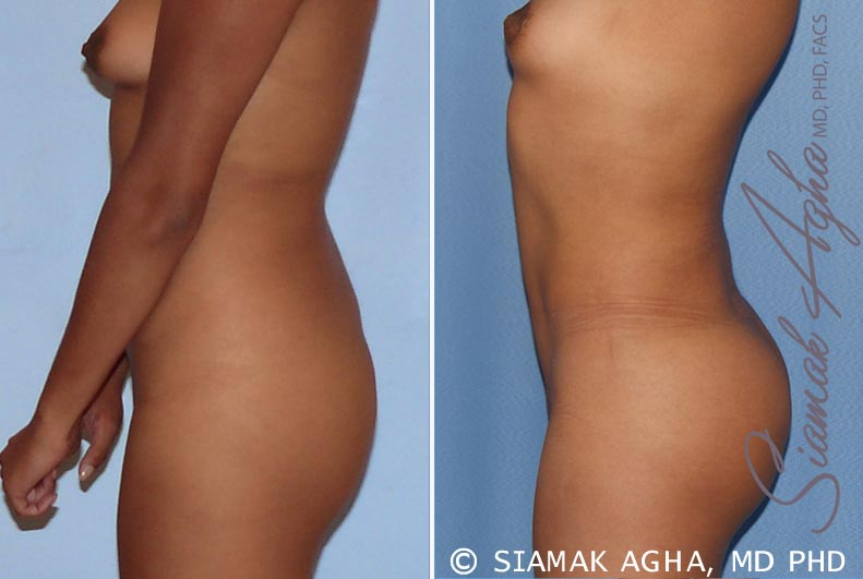 Orange County Newport Beach Liposuction 13 Left View