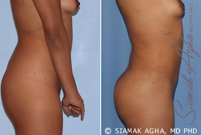 Orange County Newport Beach Liposuction 13 Right View
