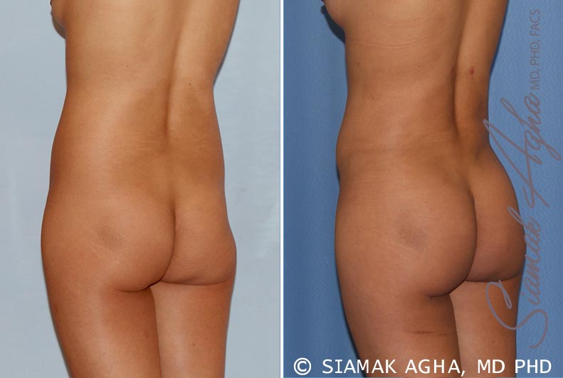 Orange County Newport Beach Liposuction 14 Back Left View