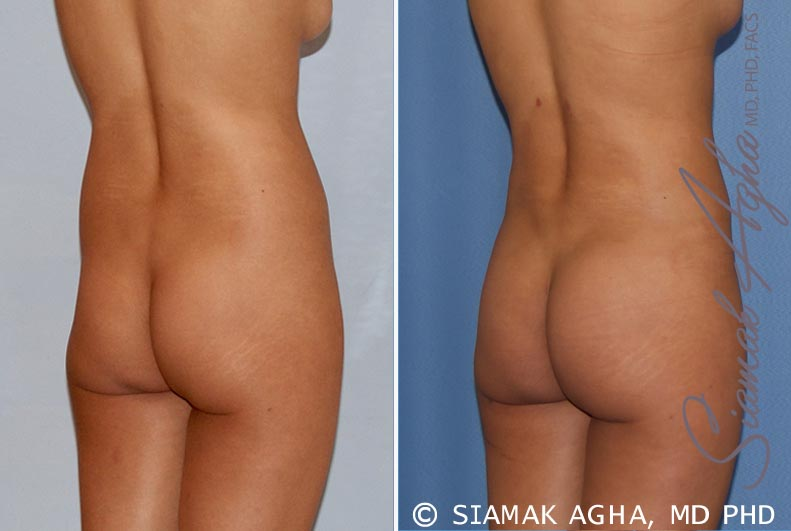 Orange County Newport Beach Liposuction 14 Back Right View
