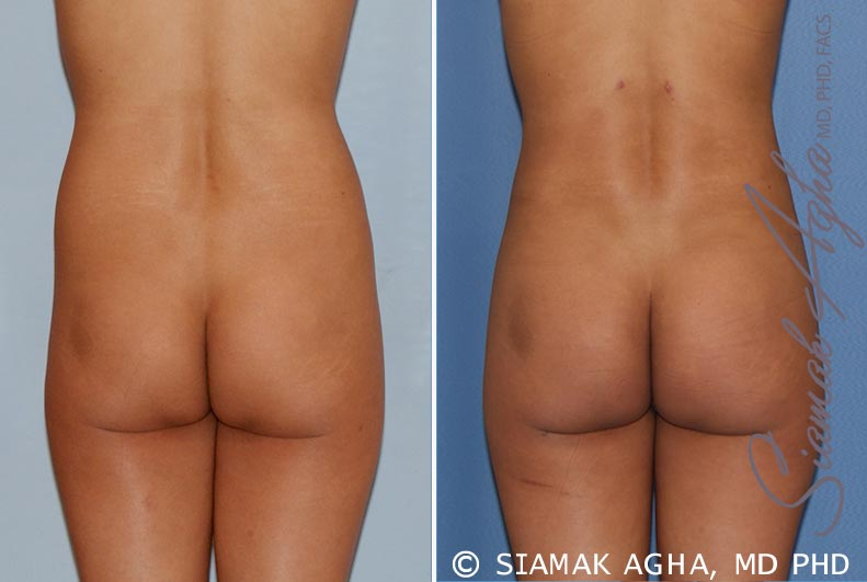 Orange County Newport Beach Liposuction 14 Back View