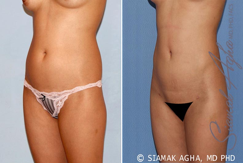 Orange County Newport Beach Liposuction 14 Front Left View