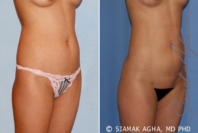 Orange County Newport Beach Liposuction 14 Front Right View