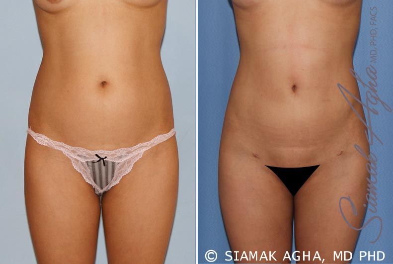 Orange County Newport Beach Liposuction 14 Front View