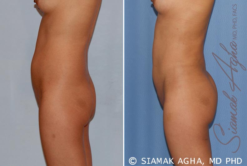 Orange County Newport Beach Liposuction 14 Left View