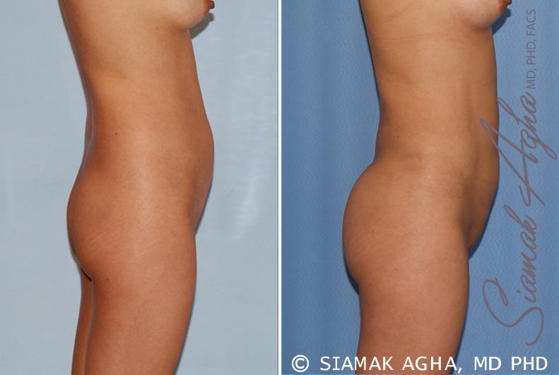 Orange County Newport Beach Liposuction 14 Right View