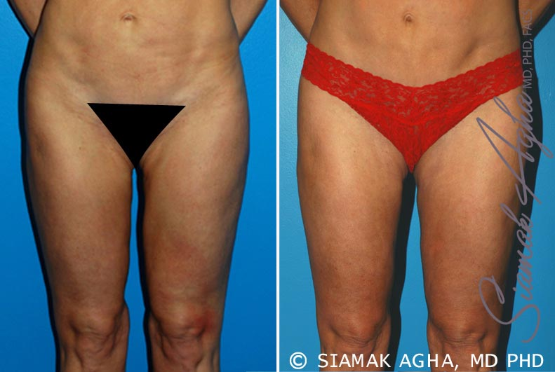 Orange County Newport Beach Liposuction Patient 15