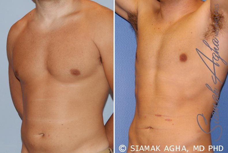 Orange County Newport Beach Liposuction 16 Front Left View