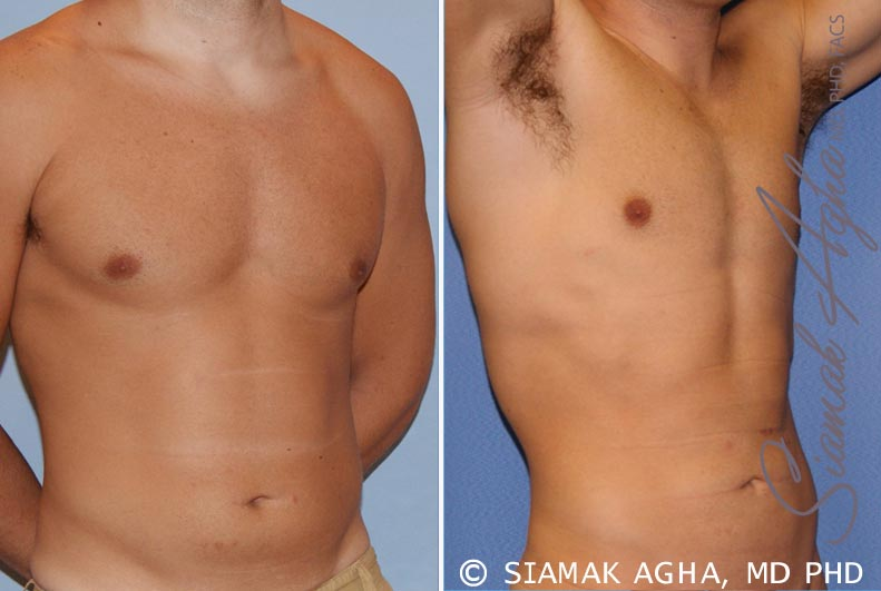Orange County Newport Beach Liposuction 16 Front Right View