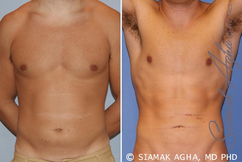 Orange County Newport Beach Liposuction Patient 16