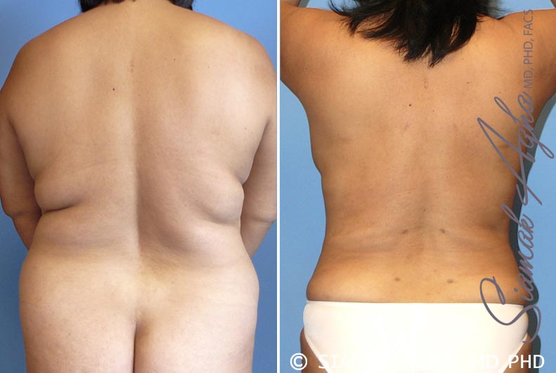 Orange County Newport Beach Liposuction Patient 17