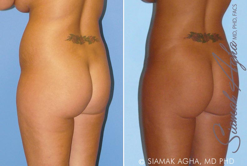 Orange County Newport Beach Liposuction 8 Back Left View