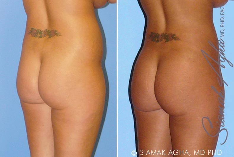 Orange County Newport Beach Liposuction 8 Back Right View