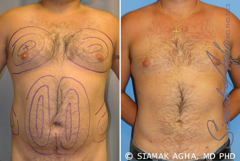 Orange County Newport Beach Male Breast Reduction 1 Front View
