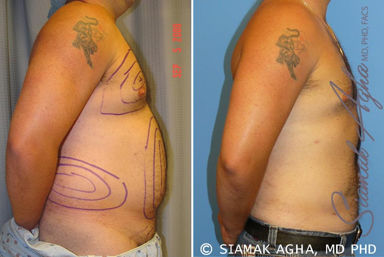 Orange County Newport Beach Male Breast Reduction 1 Right View