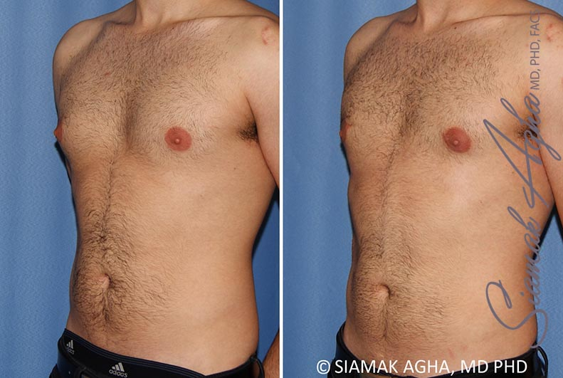 Orange County Newport Beach Male Breast Reduction 10 Front Left View