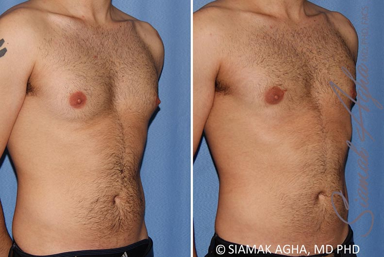 Orange County Newport Beach Male Breast Reduction 10 Front Right View