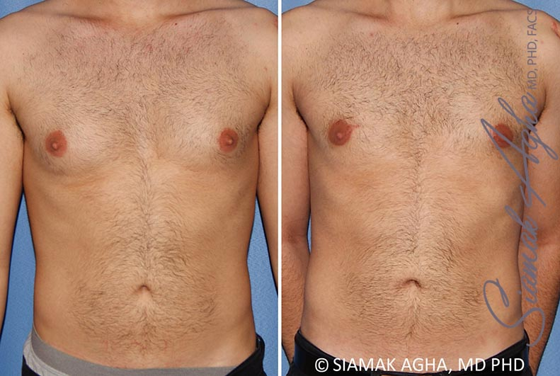 Orange County Newport Beach Male Breast Reduction 10 Front View