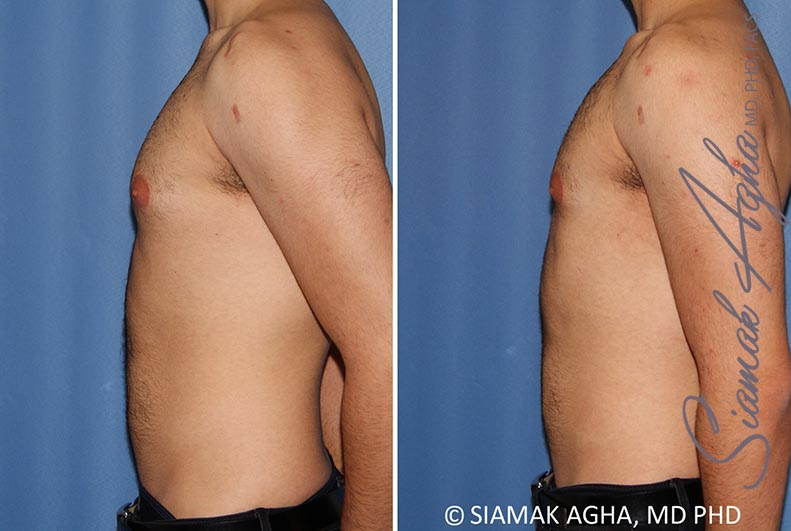 Orange County Newport Beach Male Breast Reduction 10 Left View