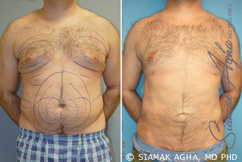 Orange County Newport Beach Male Breast Reduction 2 Front View
