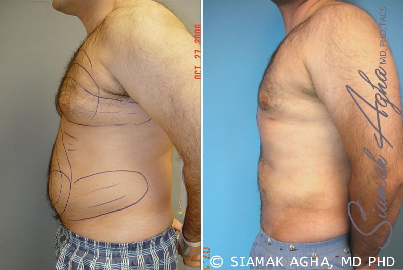 Orange County Newport Beach Male Breast Reduction 2 Left View