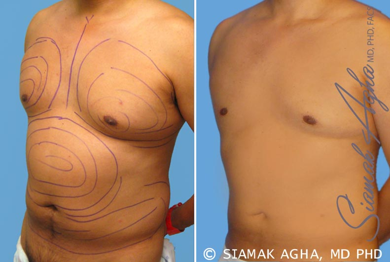 Orange County Newport Beach Male Breast Reduction 3 Front Left View