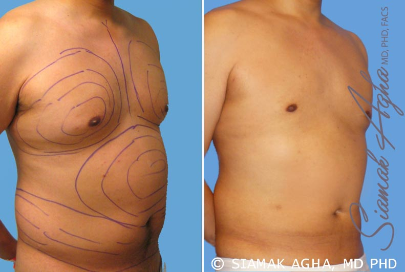 Orange County Newport Beach Male Breast Reduction 3 Front Right View