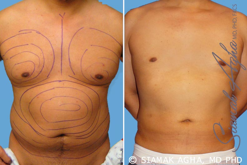 Orange County Newport Beach Male Breast Reduction 3 Front View
