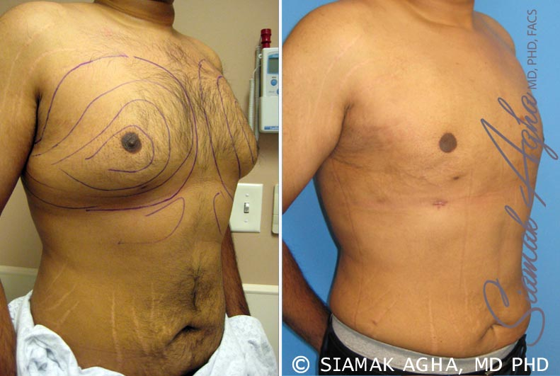 Orange County Newport Beach Male Breast Reduction 4 Front Right View