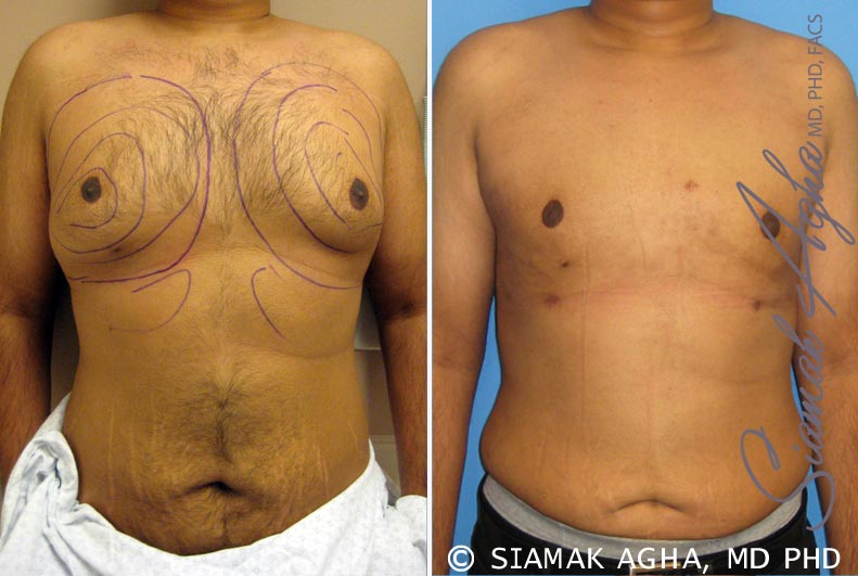 Orange County Newport Beach Male Breast Reduction 4 Front View
