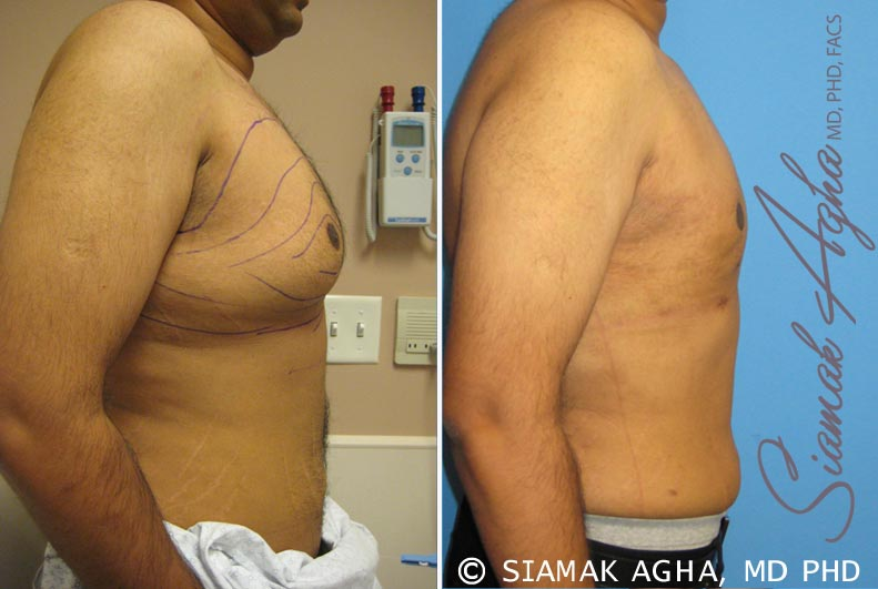 Orange County Newport Beach Male Breast Reduction 4 Right View