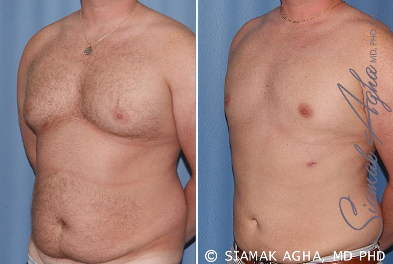 Orange County Newport Beach Male Breast Reduction 5 Front Left View