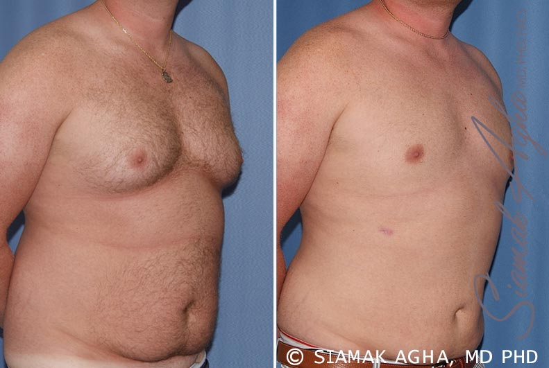 Orange County Newport Beach Male Breast Reduction 5 Front Right View
