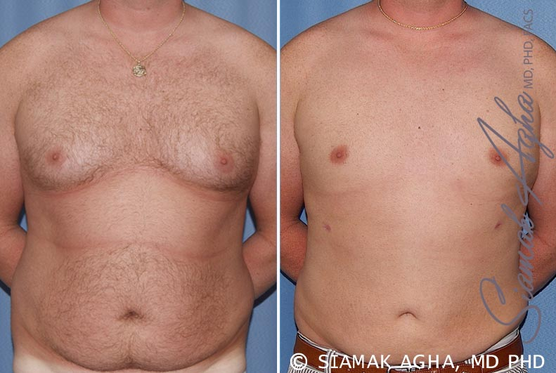 Orange County Newport Beach Male Breast Reduction 5 Front View