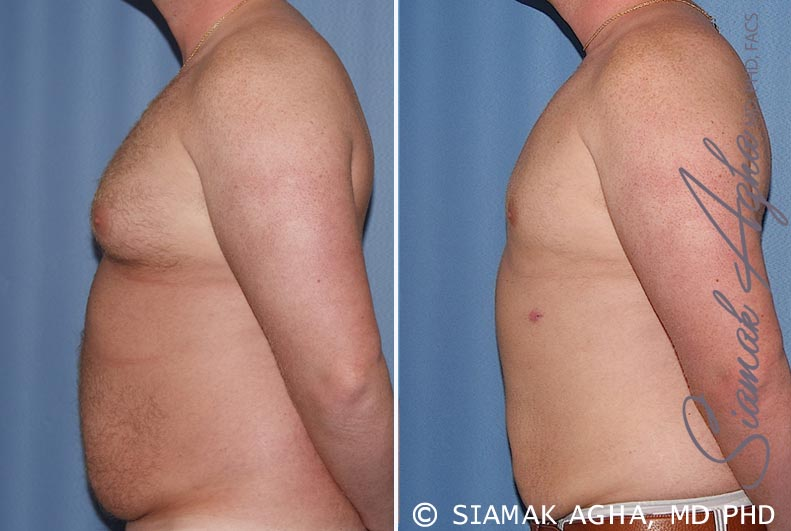 Orange County Newport Beach Male Breast Reduction 5 Left View