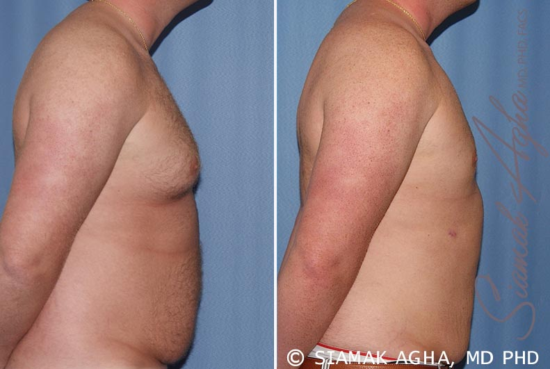 Orange County Newport Beach Male Breast Reduction 5 Right View