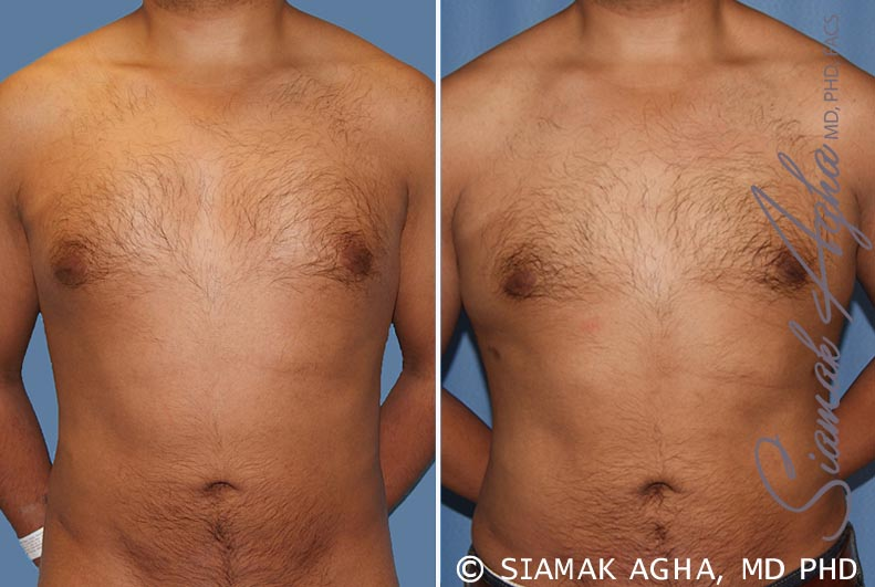Orange County Newport Beach Male Breast Reduction Patient 6