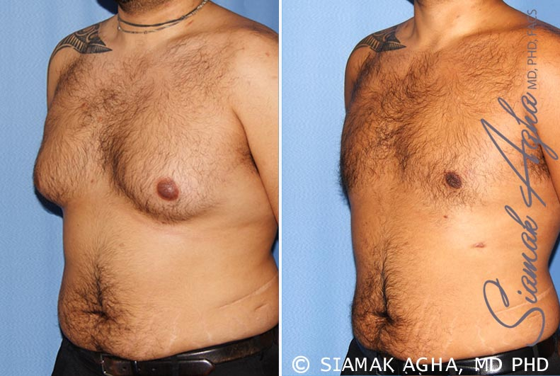 Orange County Newport Beach Male Breast Reduction 7 Front Left View