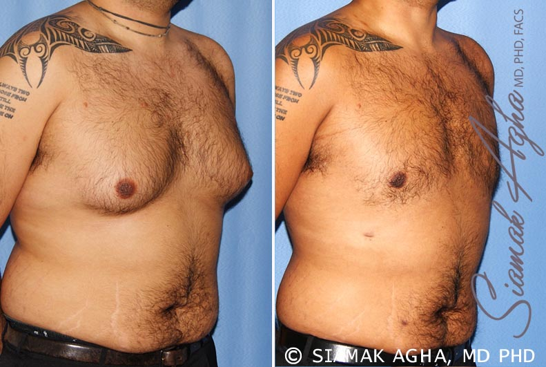Orange County Newport Beach Male Breast Reduction 7 Front Right View