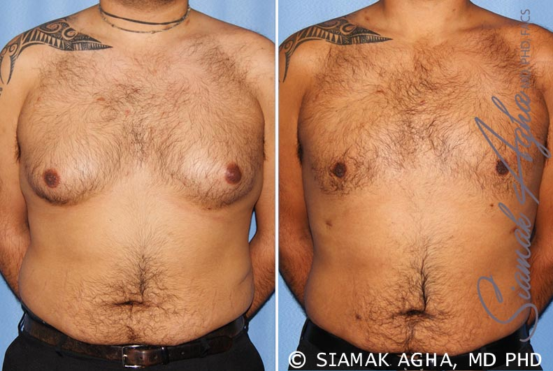 Orange County Newport Beach Male Breast Reduction 7 Front View