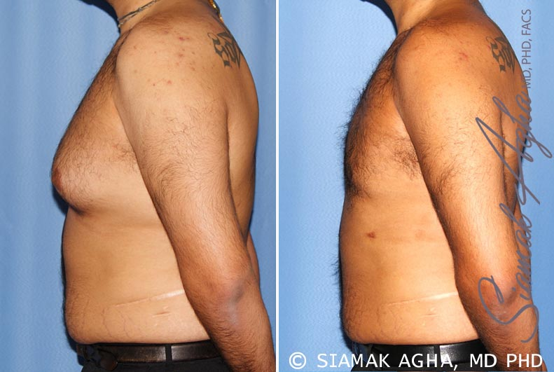 Orange County Newport Beach Male Breast Reduction 7 Left View
